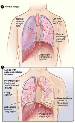 Asbestos effects on lungs